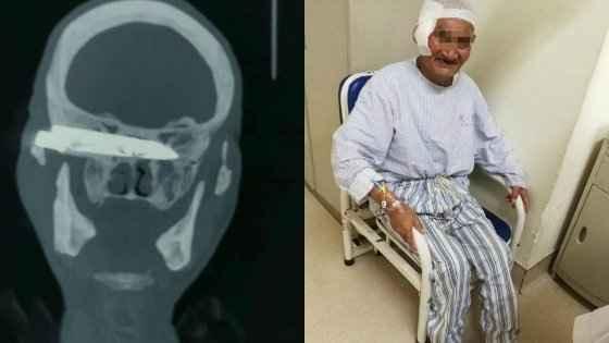 Мужчина жил 26 лет с лезвием ножа в голове