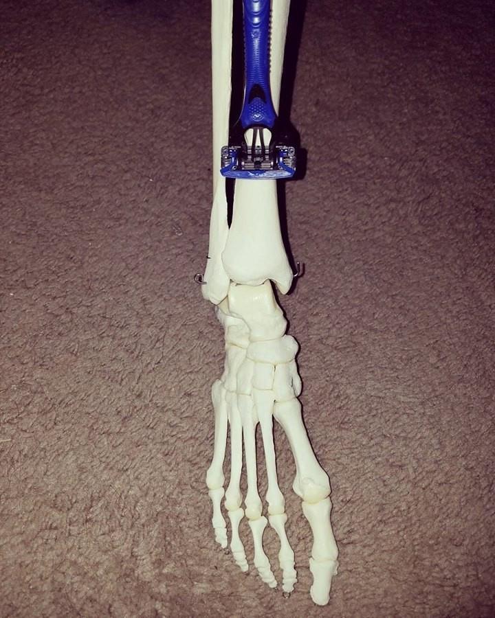 Instagram  для ампутированной ноги