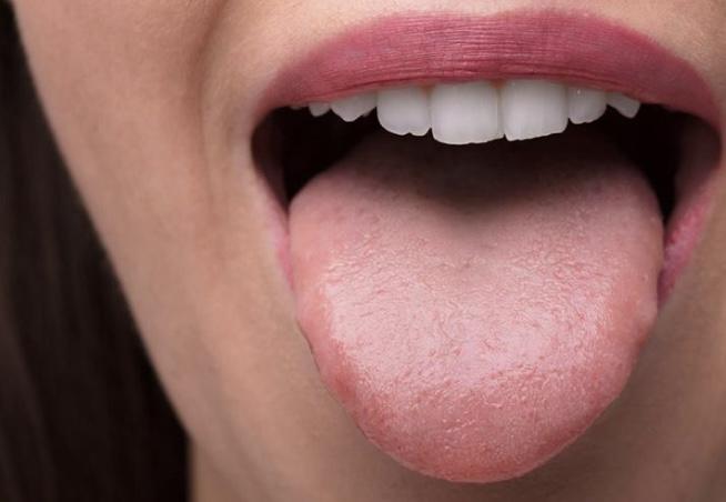 Вы знали, что язык может быть сигналом о проблемах со здоровьем