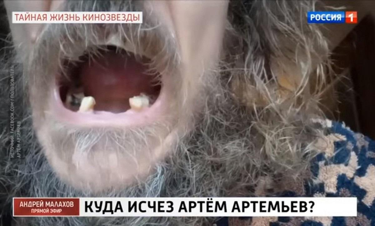 Звезда сериала «Татьянин день» Артем Артемьев: «Меня отравили. Выпали все зубы и волосы»